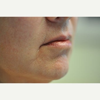 55-64 year old woman treated with Restylane before 2311444