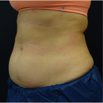 35-44 year old woman treated with CoolSculpting before 3135231
