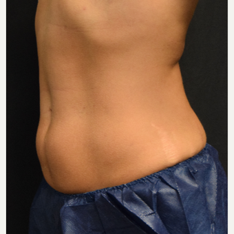 35-44 year old woman treated with CoolSculpting after 3135231
