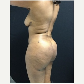 45-54 year old woman treated with Brazilian Butt Lift after 3046540