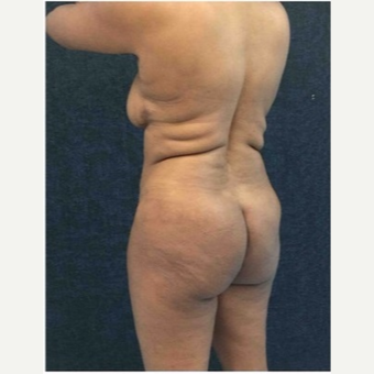 45-54 year old woman treated with Brazilian Butt Lift before 3046540