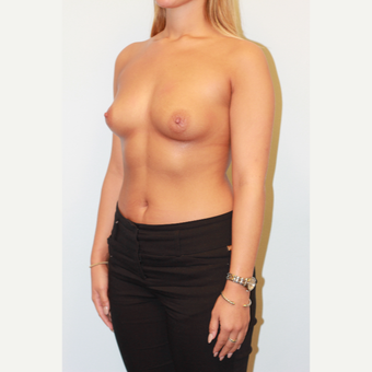 18-24 year old woman treated with Breast Implants before 3026869
