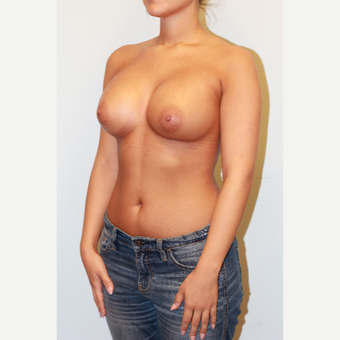18-24 year old woman treated with Breast Implants after 3026869