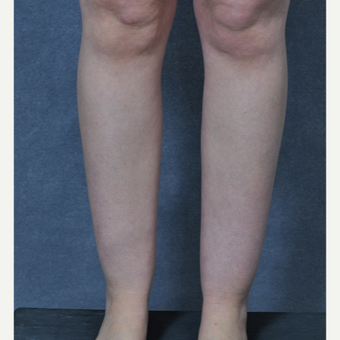 25-34 year old woman treated with Liposuction to the ankles before 3816087