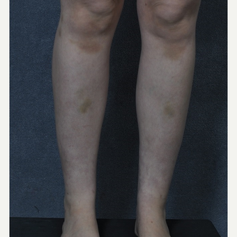 25-34 year old woman treated with Liposuction to the ankles after 3816087