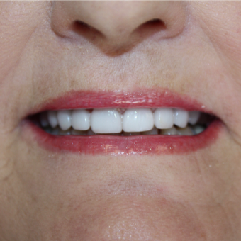 55-64 year old woman treated with Porcelain Veneers after 2852206