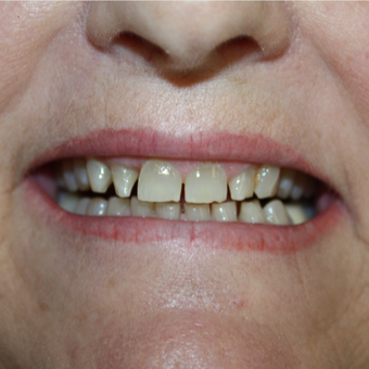 55-64 year old woman treated with Porcelain Veneers before 2852206