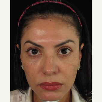Woman treated with Ultherapy