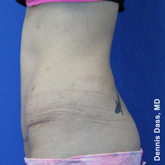 25-34 year old woman treated with Tummy Tuck after 3680012
