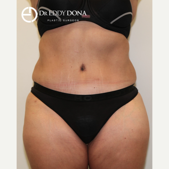 35-44 year old woman treated with Tummy Tuck after 2862508