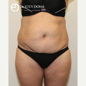 35-44 year old woman treated with Tummy Tuck before 2862508