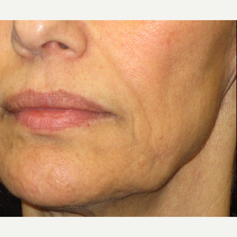 55-64 year old woman treated with Laser Treatment after 3140158