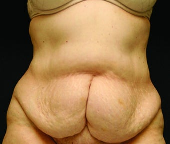 woman in early 60's treated with Tummy Tuck before 1953606