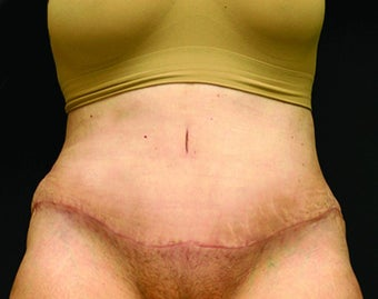 woman in early 60's treated with Tummy Tuck after 1953606