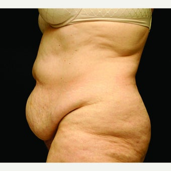 woman in early 60's treated with Tummy Tuck 1953606