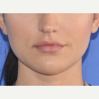 25-34 year old woman treated with Lip Augmentation before 3300122