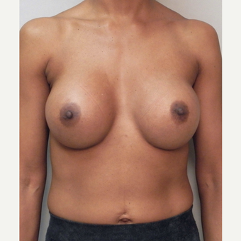 Breast Implants after 3241601