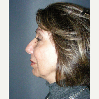 45-54 year old woman treated with Rhinoplasty before 3691983