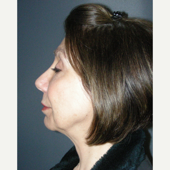 45-54 year old woman treated with Rhinoplasty after 3691983