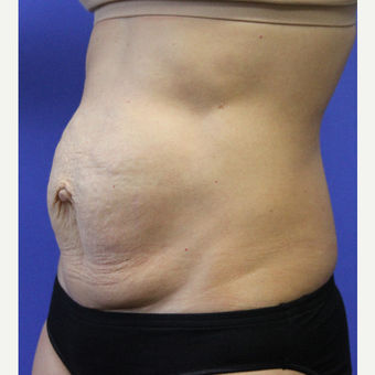 35-44 year old woman treated with Tummy Tuck before 3768832