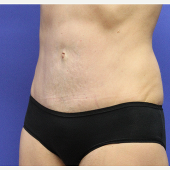 35-44 year old woman treated with Tummy Tuck after 3768832