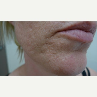 Laser resurfacing can remove scars forever.... before 1853179