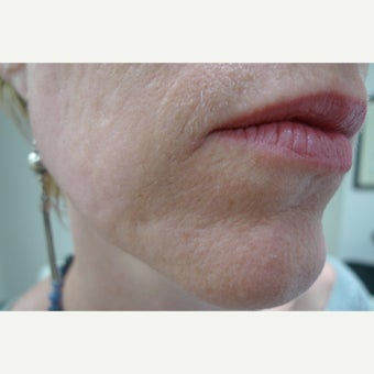 Laser resurfacing can remove scars forever.... after 1853179