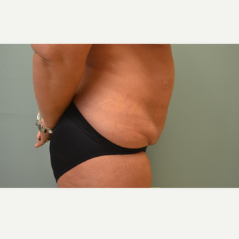 35-44 year old woman treated with Tummy Tuck before 3658448