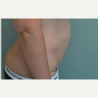 35-44 year old woman treated with Tummy Tuck after 3658448