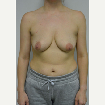25-34 year old woman treated with Breast Lift with Implants before 3763071