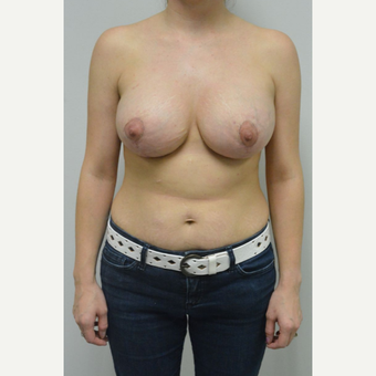 25-34 year old woman treated with Breast Lift with Implants after 3763071