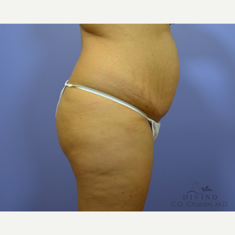 25-34 year old woman treated with Tummy Tuck before 3422093