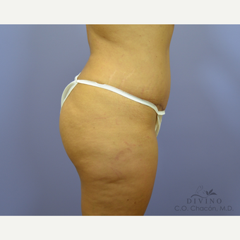 25-34 year old woman treated with Tummy Tuck after 3422093