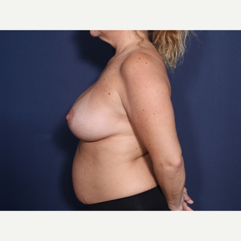 35-44 year old woman treated with Breast Augmentation (view 2 of 2) after 3788265