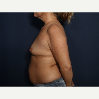 35-44 year old woman treated with Breast Augmentation (view 2 of 2) before 3788265