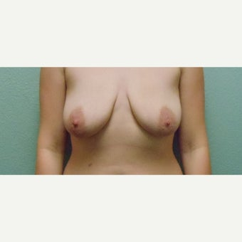 25-34 year old woman treated with Breast Lift before 1774452