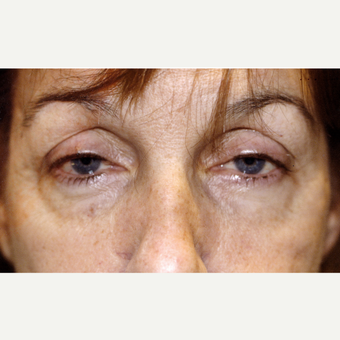 45-54 year old woman treated with Drop-and-Lift; complained of a tired appearance. before 3171739