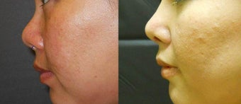 Asian Revision Rhinoplasty before 1028955