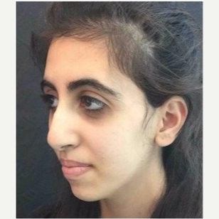 18-24 year old woman treated with Rhinoplasty before 3047016