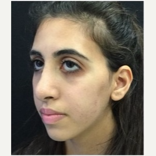 18-24 year old woman treated with Rhinoplasty after 3047016