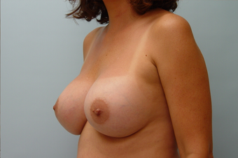 Breast Implants: 45-Year-Old Female 1034625