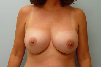 Breast Implants: 45-Year-Old Female after 1034625