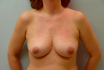 Breast Implants: 45-Year-Old Female before 1034625