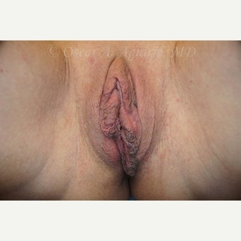 61 yo woman treated with Vaginoplasty, Labiaplasty & Clitoral Hood Reduction w/Pexy (View 1 of 4) before 2107269