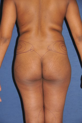 Brazilian Buttock lift before 525445