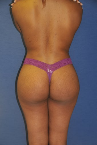 Brazilian Buttock lift after 525445
