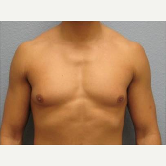 18-24 year old man treated with Male Breast Reduction before 3736977
