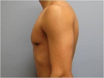 18-24 year old man treated with Male Breast Reduction 3736977