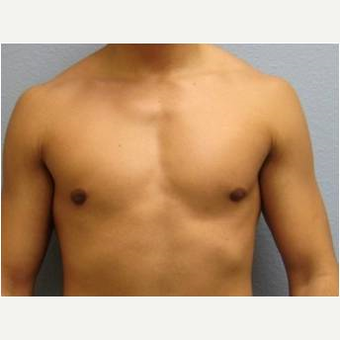 18-24 year old man treated with Male Breast Reduction after 3736977