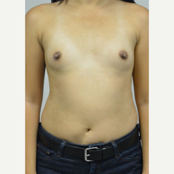 35-44 year old woman treated with Breast Implants before 3005059
